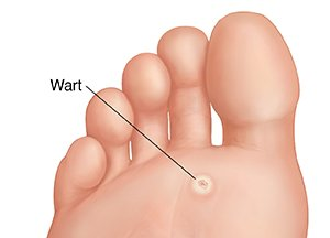 Plantar Warts And Your Childs Feet HPV