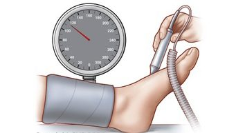 State-of-the-art circulation test for circulation in the feet.